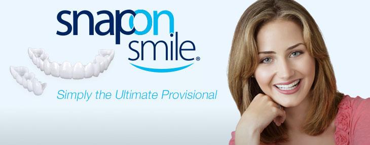 perfect smile veneers instructions